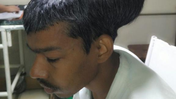 Sanlal Pal, 31, had a  a 1.873 kg (4.1 lb) removed from his brain by surgeons at BYL Nair Charitable Hospital in India.