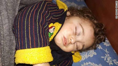 This unconscious toddler, who has been separated from his parents and whose identity is unknown, is being cared for by medical workers in Syria's besieged Eastern Ghouta.