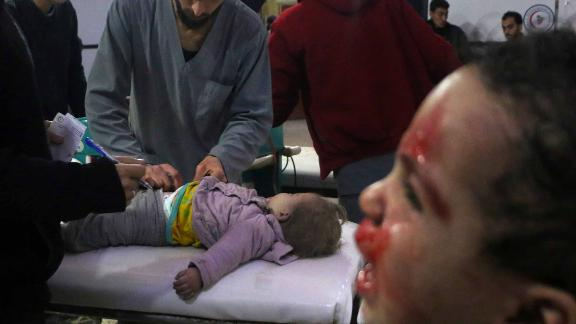 Medics tend to a baby as a child cries next to them at a makeshift clinic in Douma, Syria, on Thursday, February 23. More than 400 civilians have been killed this week in Syria