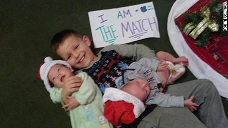 4-year-old donating bone marrow to help his twin brothers