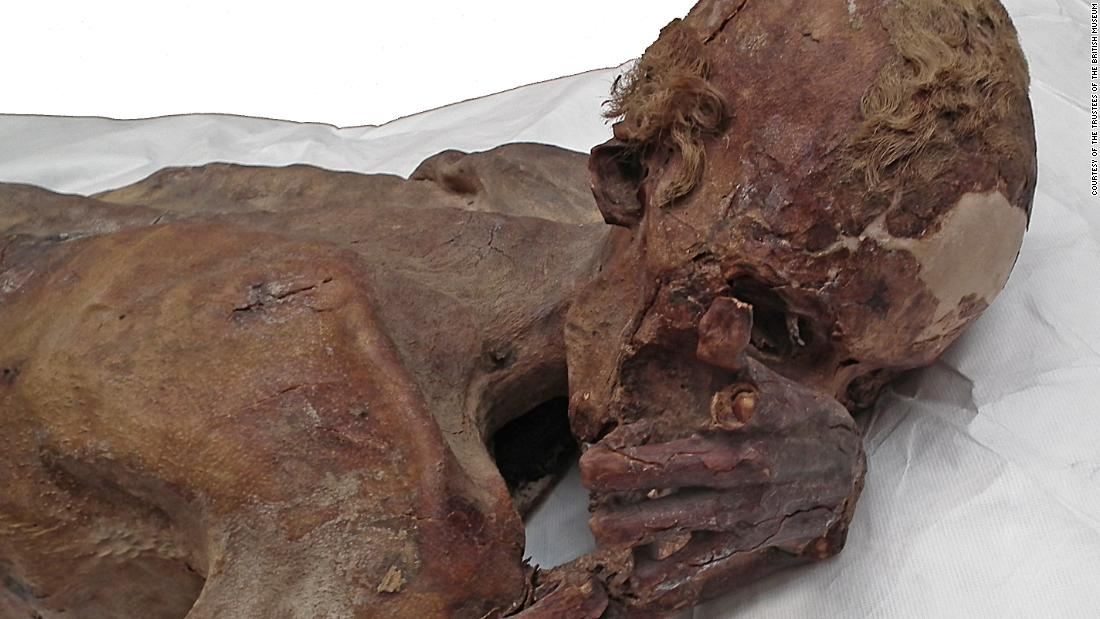 Researchers found a tattoo on the upper arm of this Egyptian mummy. He is thought to have lived around 5,000 years ago and was between 18 and 21 years old when he died from a stab wound to the back.