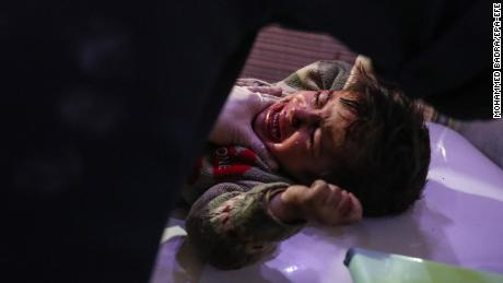 An injured child is treated at a hospital in Douma, Syria, on February 19.