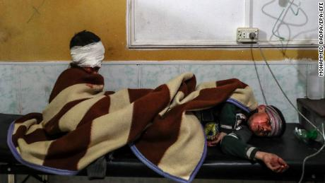 Injured children rest at a hospital in Douma.