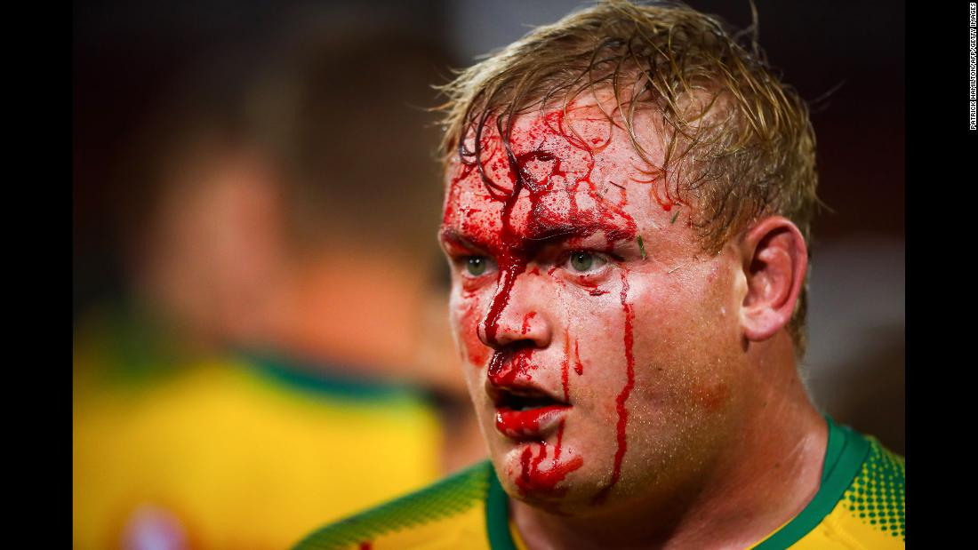 Blood runs down the face of Adriaan Strauss during a Super Rugby match in Brisbane, Australia, on Saturday, March 10.