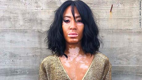 Young Woman S Skin Condition Leads To Splotchy Appearance And A Modeling Career Cnn