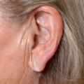 Creased earlobes stock image RESTRICTED