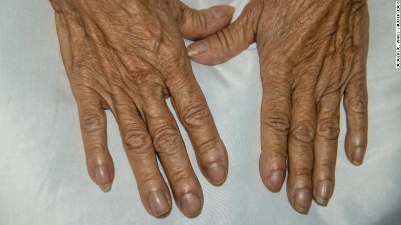 A phenomenon known as digital clubbing may also be a sign that all is not well with your heart. The fingernails change shape, becoming thicker and wider.