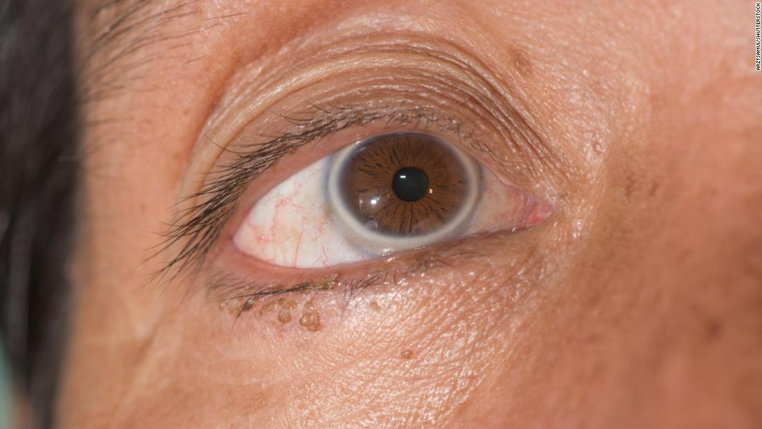 Fat deposits may also be seen as a gray ring around the outside of the iris, the colored part of the eye.
