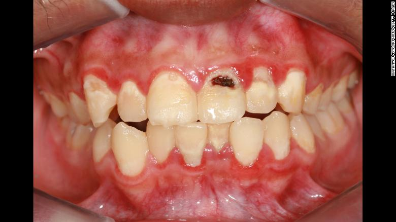 """Studies have shown that <a href=""""https://www.ncbi.nlm.nih.gov/pmc/articles/PMC5013478/"""" target=""""_blank"""">tooth loss</a> and <a href=""""http://jech.bmj.com/content/71/1/37"""" target=""""_blank"""">inflamed gums</a> (periodontitis) are markers of heart disease."""