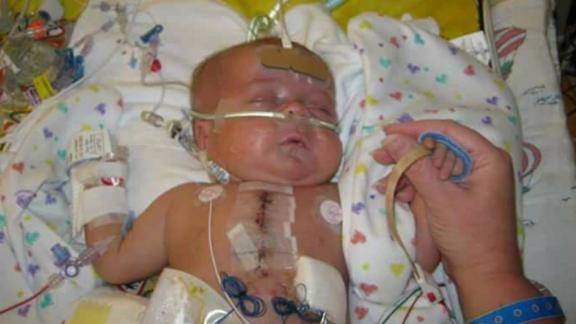 Boone Begner has had five surgeries, the first four within a year of his birth.
