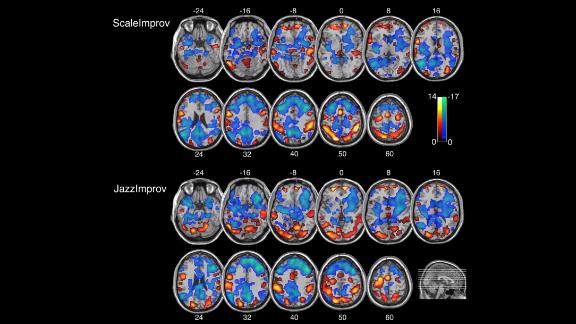Scans of musicians' brain as they play scales vs improvisational music.