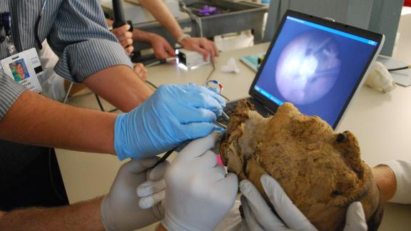 In 2009, doctors from the Massachusetts General Hospital extracted a tooth from the mummified head.