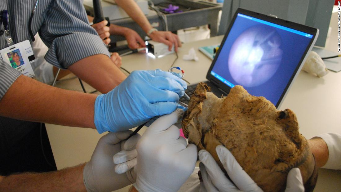 For years archaeologists had puzzled over whether the mummy's head belonged to husband or wife. The Boston Museum of Fine Arts, in possession of the entire contents of the tomb, sent it out for analysis. In 2009, doctors from the Massachusetts General Hospital extracted a tooth from the mummified head.