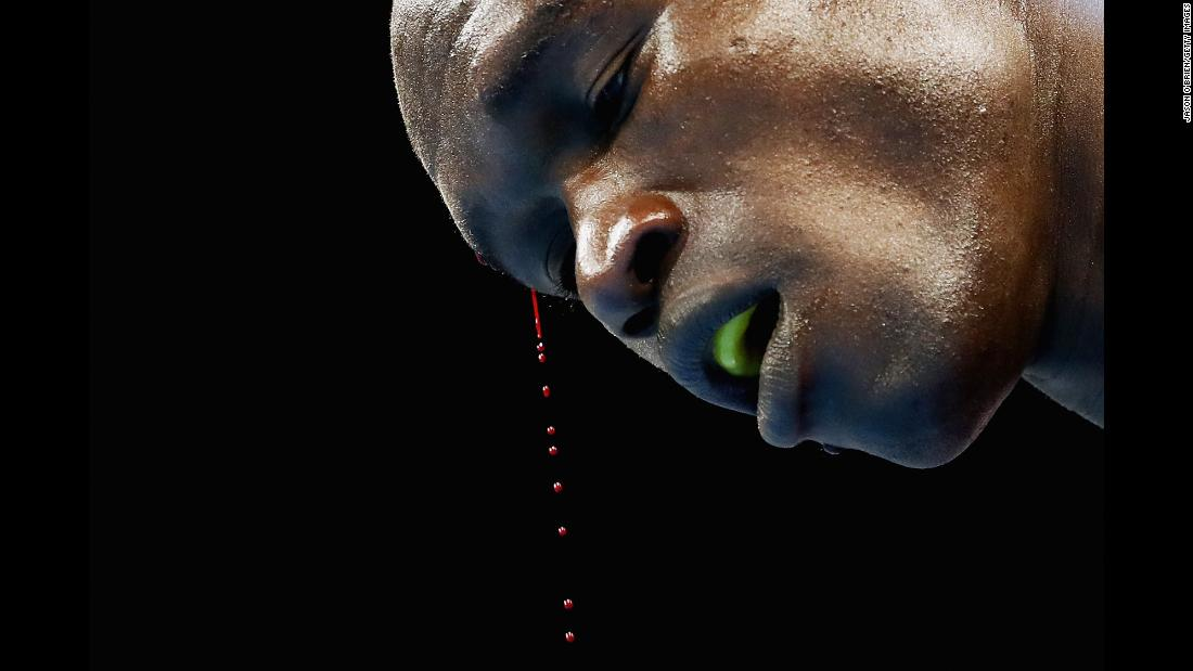 Blood drips from the head of Kenyan boxer Nicholas Okoth during the Commonwealth Games on Thursday, April 5.