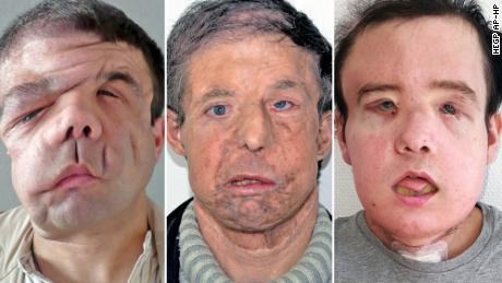 Jérôme Hamon, 43, before his first face transplantation surgery (on left), after his first transplantation (middle), and then after his second transplantation (on right)
