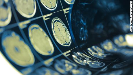 Covid-19 neurological symptoms emerge in most hospitalized patients, study says