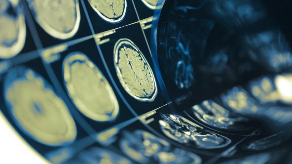 Human brain scan testing film folded in a roll.