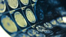 Neurological symptoms of Covid-19 emerge in the majority of hospitalized patients, the study says