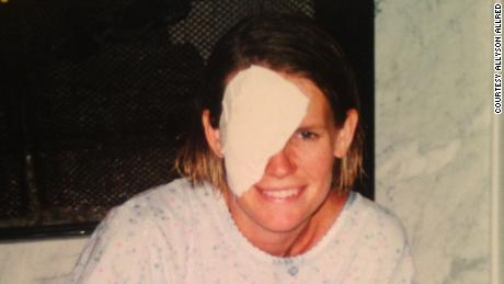 Allyson Allred after her eye was removed in 2001.