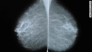 Many women with common breast cancer can safely skip chemo, study says