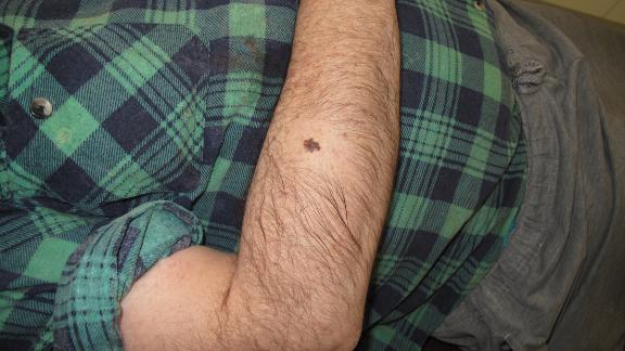 A melanoma skin cancer.