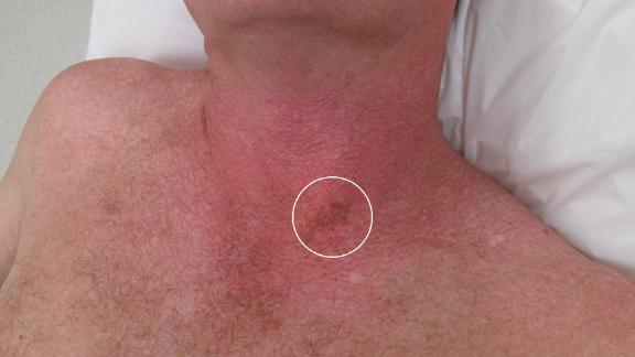 Two or three Australian young people are diagnosed with melanoma every day.
