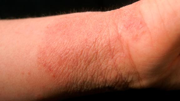 Contact Dermatitis. (Photo By BSIP/UIG Via Getty Images)