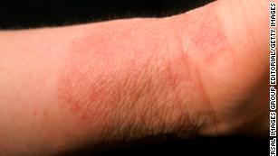 A possible new weapon against eczema: live bacteria