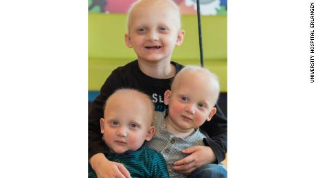 Twins Linus, left, and Maarten have more sweat glands and tooth precursors than their older brother Joshua, 5, after being treated with a drug in utero.