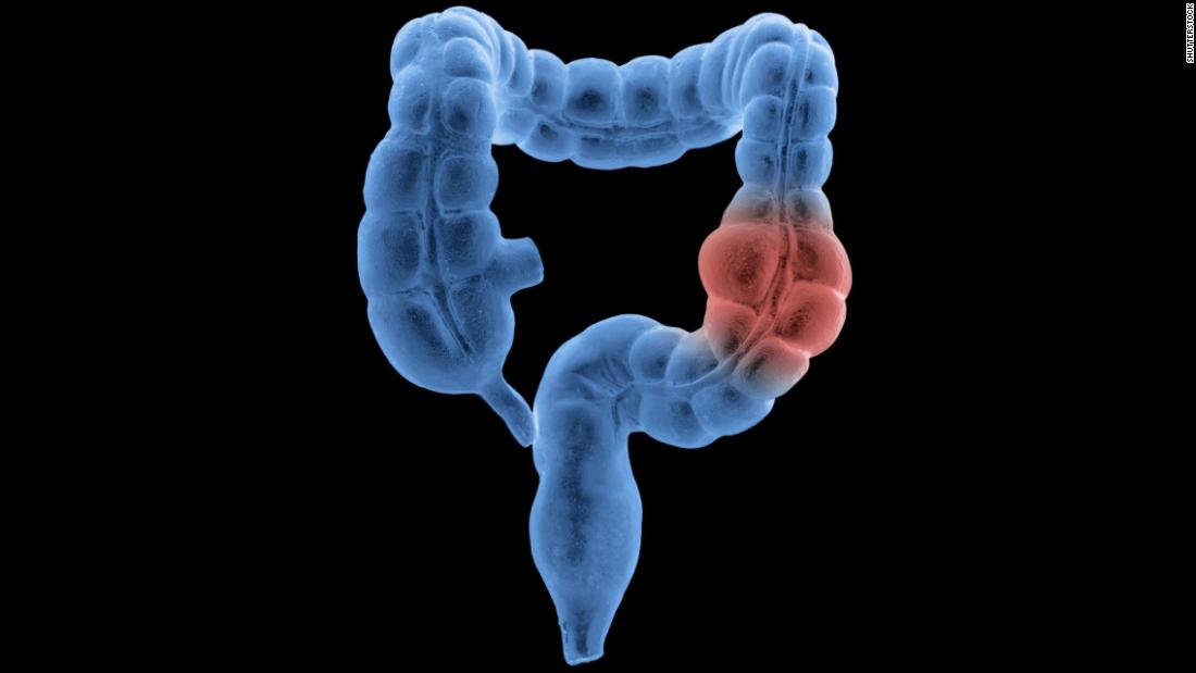 Colon Cancer Misdiagnosis In Younger Adults Is A Concern, Study Indicates