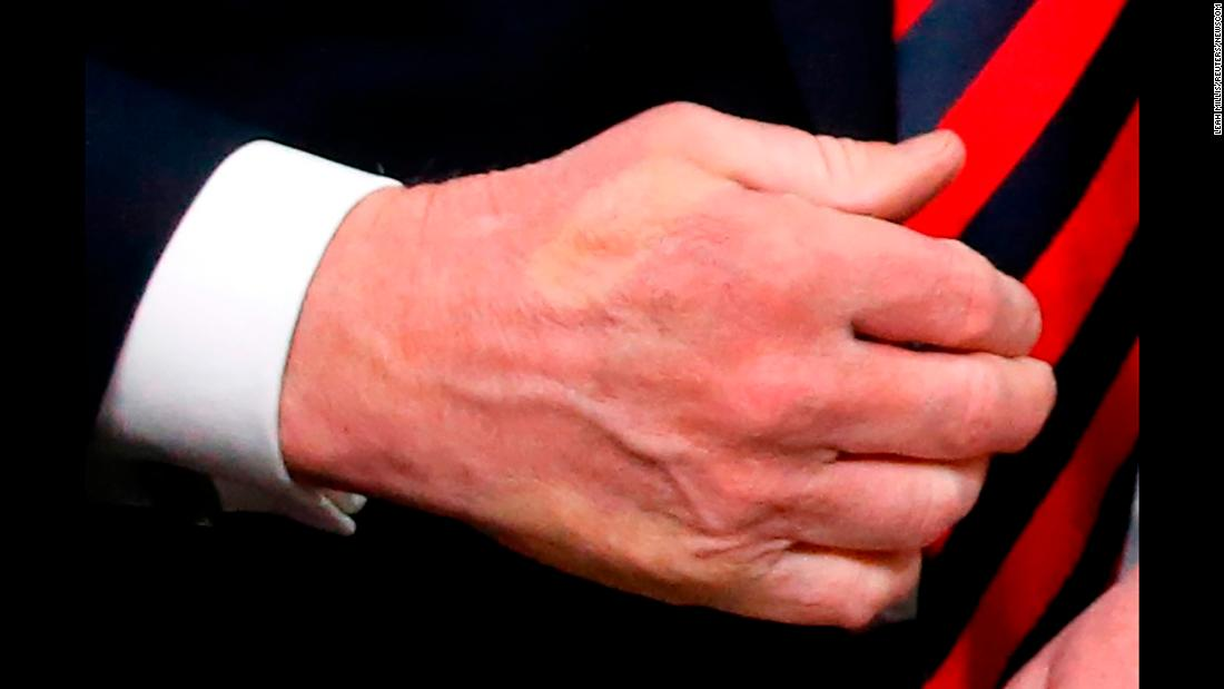 The imprint of French President Emmanuel Macron's thumb is seen on the hand of US President Donald Trump after the two shook hands at the G7 summit on Friday, June 8.