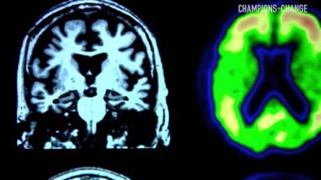 Is Alzheimer's disease preventable?