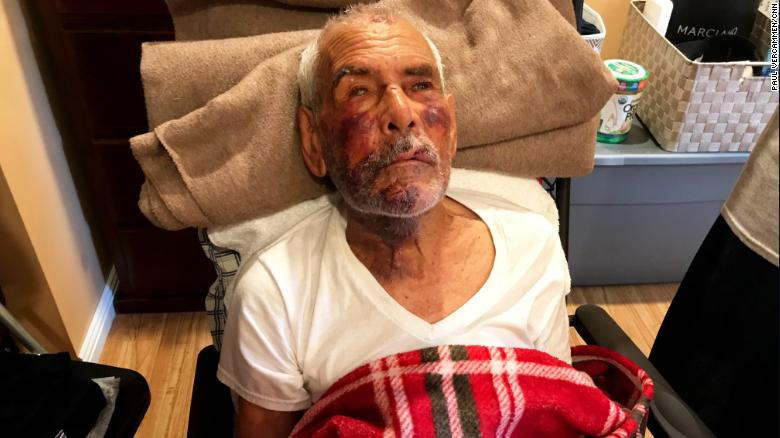 Rodolfo Rodriguez suffered a broken jaw, broken cheek, two broken ribs and bruises, his family says.