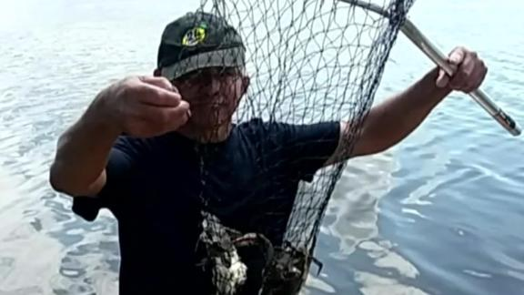 Angel Perez picked up a life-threatening infection while crabbing in New Jersey waters.