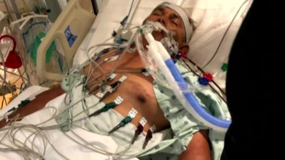 Angel Perez, 60, picked up a severe infection while crabbing and was hospitalized in Camden, New Jersey, CNN affiliate KYW reports.
