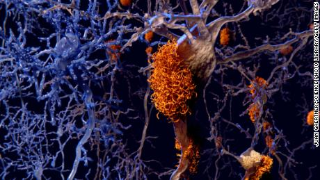 Experimental Alzheimer's drugs spark hope after early trials