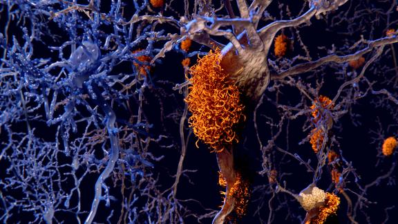 Brain nerve cells affected by alzheimers, computer illustration.