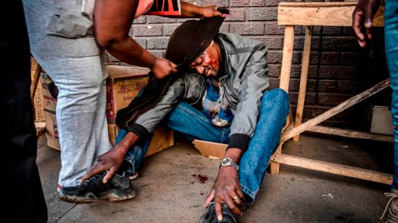 An MDC supporter allegedly beaten up by soldiers sits with blood on his face as other protesters assist him in Harare on Wednesday.