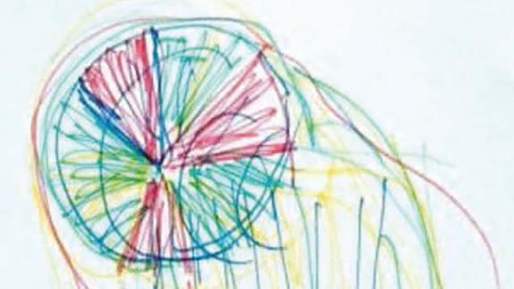 "A man drew an image of the ""beautiful"" visual phenomena he saw while having a seizure."