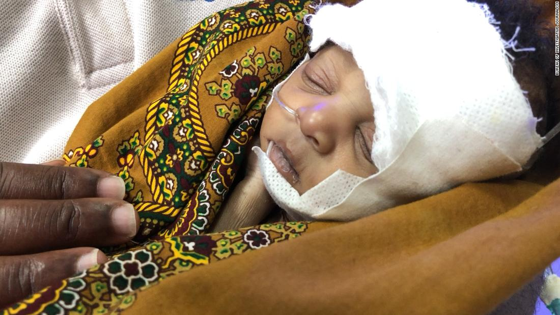 Abigail Matchaya weighed just 3 pounds at birth, having been born prematurely, and soon developed sepsis.