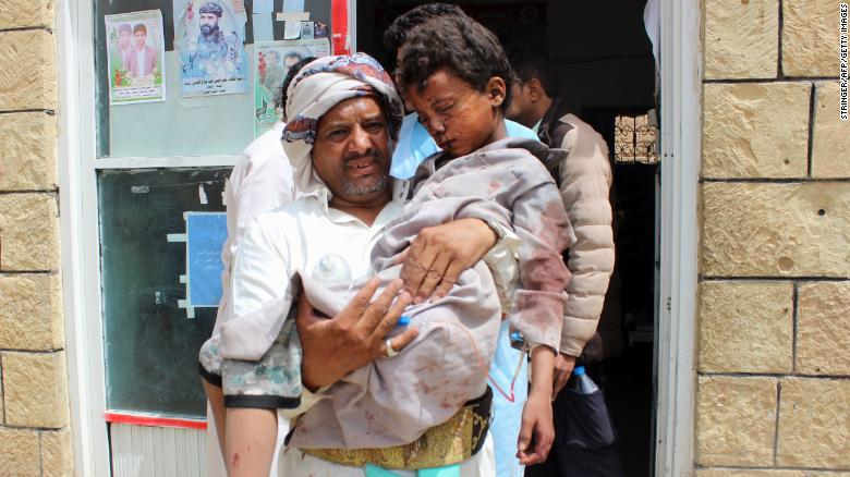A man carries a wounded child in the aftermath of the attack.