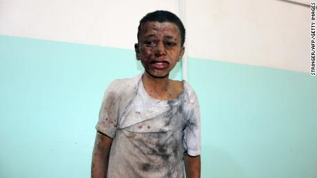 A Yemeni child was injured on Thursday air raid on a school bus