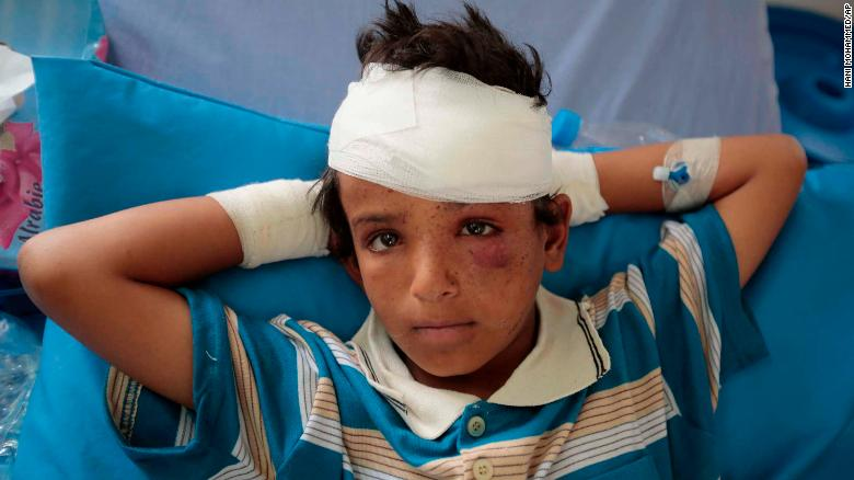 One of the children injured in Thursday's attack.