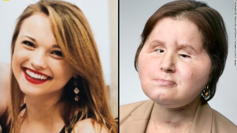 Suicide survivor gets historic face transplant