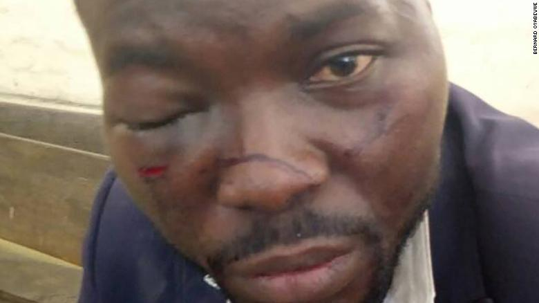 Oyabevwe alleged he was beaten by police officers.