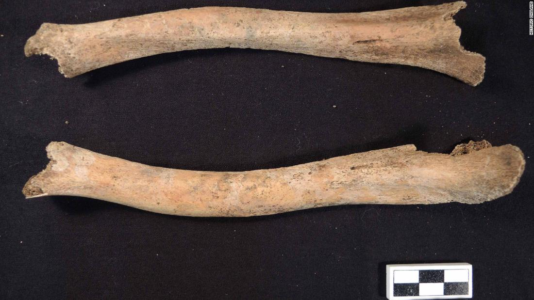The leg bones of a 7-year-old, recovered from an ancient Roman cemetery, show bending and deformities associated with rickets.