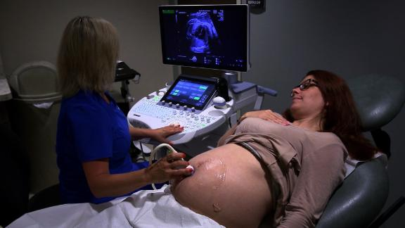 sanjay pregnant women