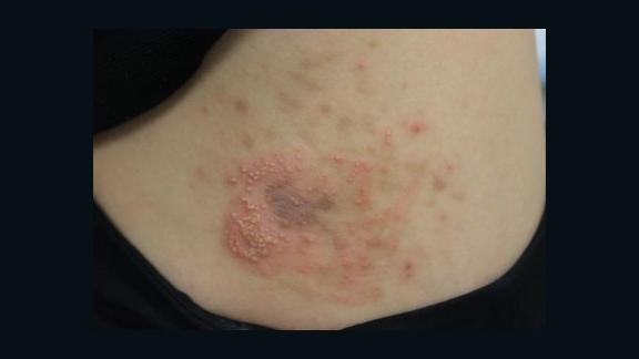 An example of contact dermatitis