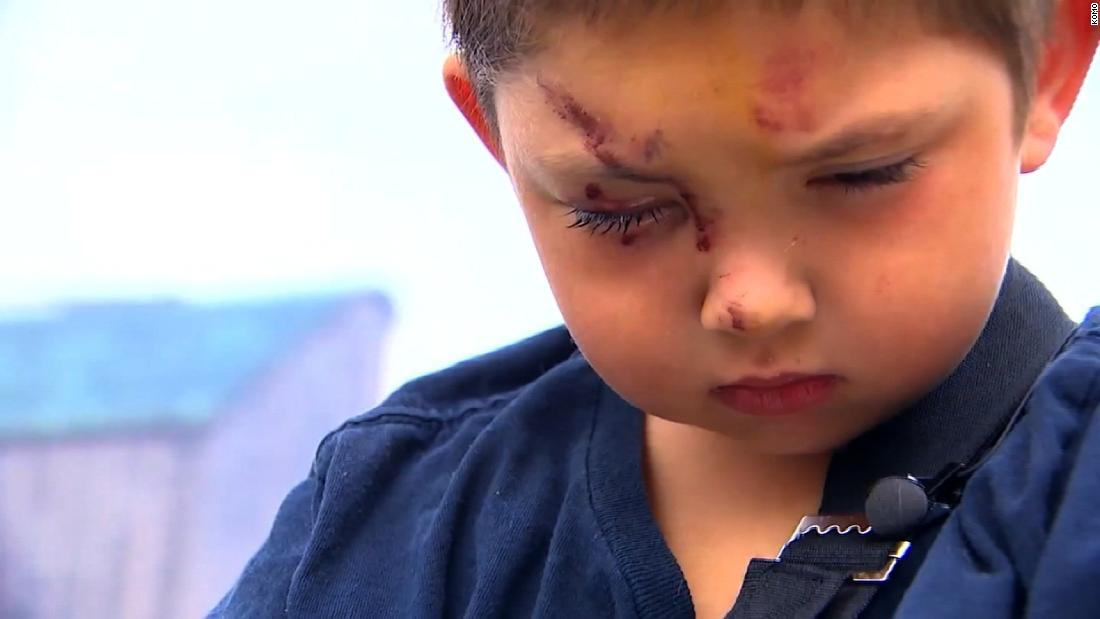 Police: Boy confronts bullies,...