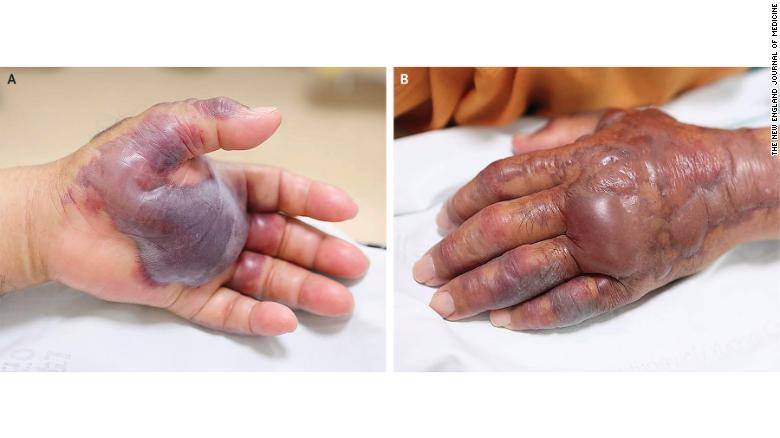 The man's hand and arm were swollen by the time he reached the ER.